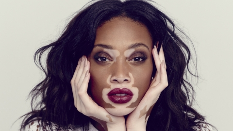 Vloggers making a difference: Winnie Harlow